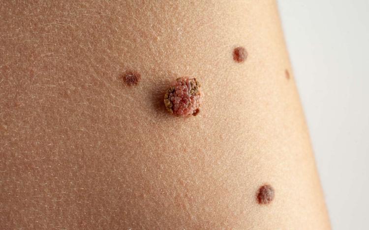 Formation médicale cancers de la peau en DPC