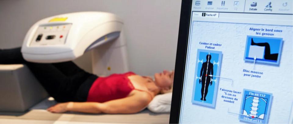 Formation médicale sur l'ostéoporose en DPC